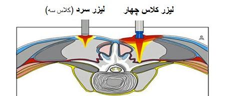تفاوت لیزر پرتوان و لیزر سرد