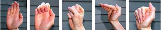 عصب مچ دست