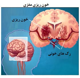 خون ریزی مغزی