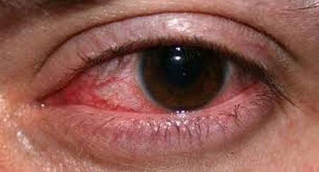 التهاب عصب چشم
