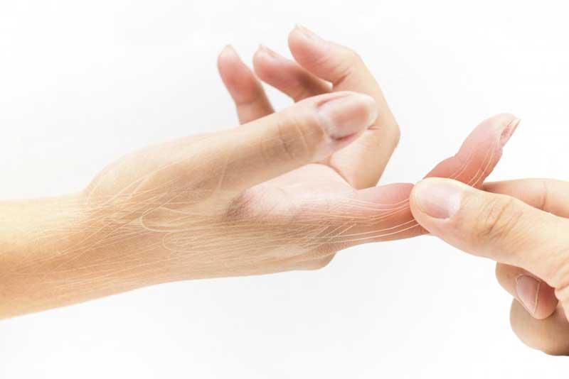 جراحی مچ دست