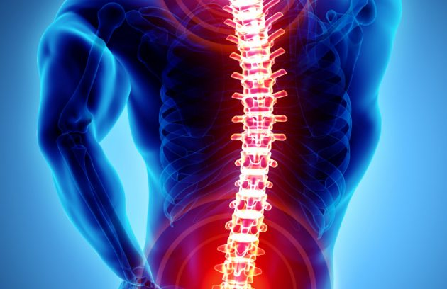 spine-problems rokhsatyazdi.com